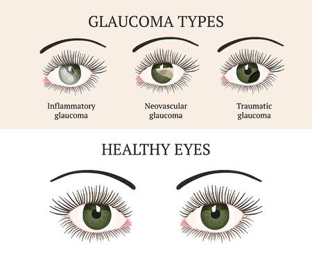 Eye disease. Ophthalmology health. Glaucoma types ans healthy eye. Vector flat eye healt illustration. Glaucoma chronic eye pathology.