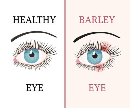 Barley eye and healthy eye. Eye disease.
