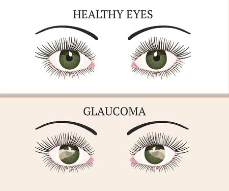 Eye disease. Ophthalmology flat health vector illustration. Glaucoma chronic eye pathology.
