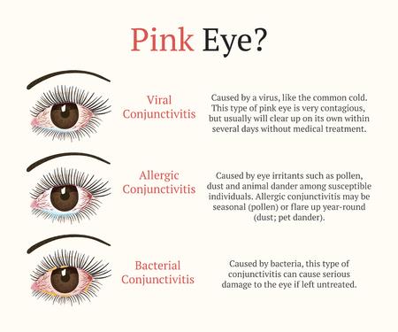 Congiuntivite, occhi rosa. Malattia degli occhi. Oftalmologia piatto salute illustrazione vettoriale. Tipi di congiuntivite più comuni.