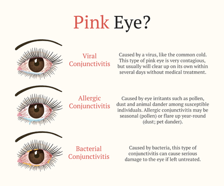 Conjunctivitis, pink eyes. Eye disease. Ophthalmology flat vector health illustration. Most common conjunctivitis types. Illustration