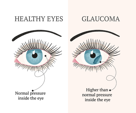 Eye disease. Ophthalmology flat health vector illustration. Healthy eye. Glaucoma chronic eye pathology.