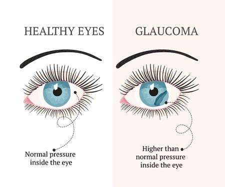 Eye disease. Ophthalmology flat health vector illustration. Healthy eye. Glaucoma chronic eye pathology.