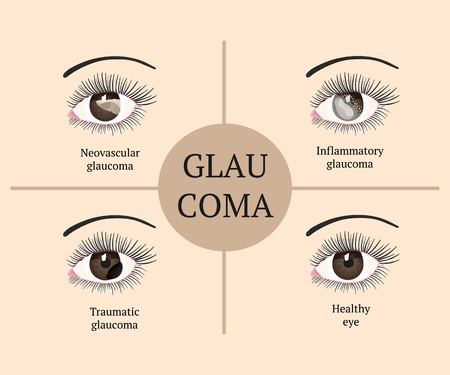 Eye disease. Ophthalmology health. Glaucoma types. Vector flat eye healt illustration.
