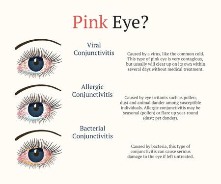Conjunctivitis, pink eyes. Eye disease. Ophthalmology flat health illustration. Most common conjunctivitis types. Vector. Illusztráció