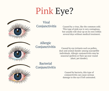 Conjunctivitis, pink eyes. Eye disease. Ophthalmology flat health illustration. Most common conjunctivitis types. Vector. Illustration