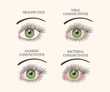 Conjunctivitis, pink eyes. Eye disease. Ophthalmology flat health illustration. Most common conjunctivitis types. Vector. Vetores