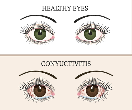 Conjunctivitis symptoms, pink eyes. Eye disease. Ophthalmology flat health vector illustration.