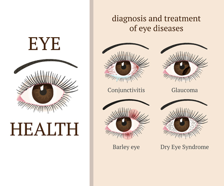 Eye disease. Most common eye problemc - conjunctivitis, glaucoma, dry eye syndrome, barley eyes. Ophthalmology flat health vector illustration.