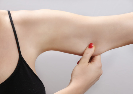 excess: Woman holding a hand with excess fat Stock Photo