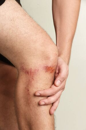 nasty: Close up view of nasty wounds on mans knee