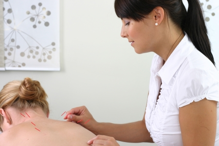 acupuncturist: acupuncturist inserting needles into client