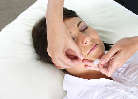 acupuncture treatment with facial needles  Stock Photo