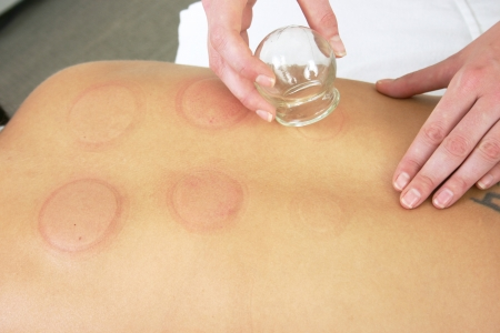 therapist removing cups following cupping treamtent Stock Photo
