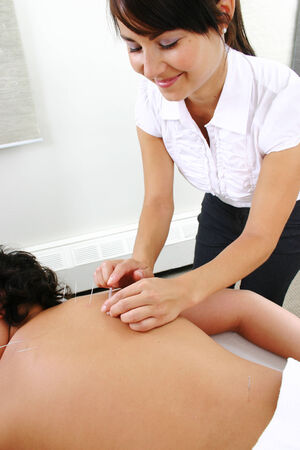 acupuncturist: acupunturista inserta una aguja en la espalda de ni�o Foto de archivo