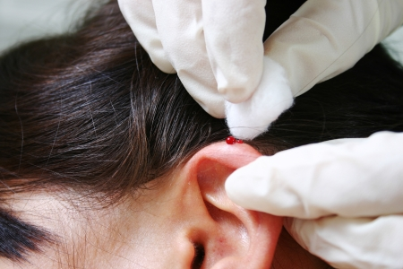 therapist performing ear needling on client