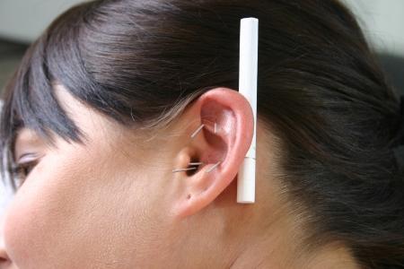acupuncture treatment for smoking cessation Standard-Bild