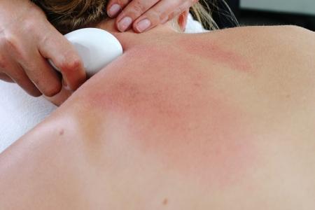 gua: therapist providing Gua Sha treatment
