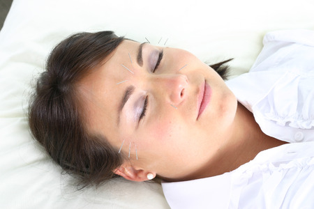 acupuncture treatment with facial needles