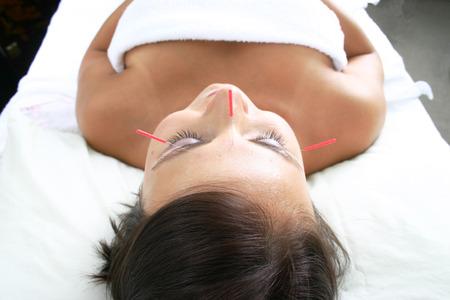 acupuntura china: Spa tratamiento con agujas de acupuntura