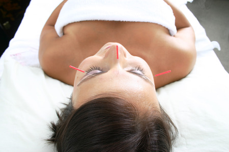 Spa treatment with acupuncture needles