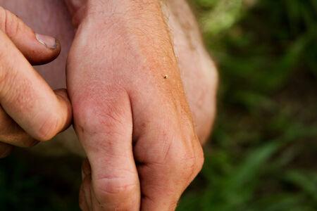 Hand exposing sting of bee