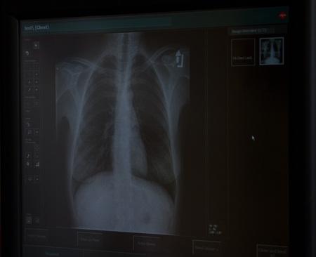 x ray machine: Chest radiograph Stock Photo
