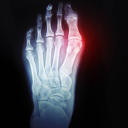 bursitis of the big toe. Callus on the leg. X-ray of the foot with the designation of the sore spot. Bone and joint health, concept
