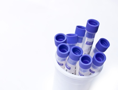 examenes de laboratorio: tubos de ensayo sobre fondo blanco.
