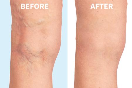 Las venas varicosas en la piel de cerca macro problema de circulación de la medicina