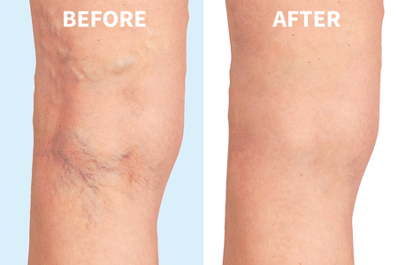 varicose veins on the skin macro close up circulation problem medicine