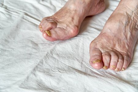 Closeup of a foot with damaged nails because of fungus. Elderly woman legs. Diabetis