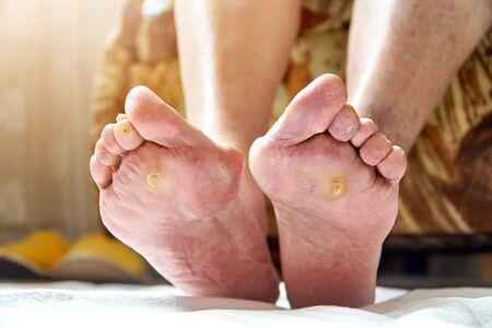 Een bejaarde vrouwenvoeten met podagra, paddestoel en diabetische ucler, callus. Zorgconcept