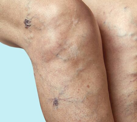 Varicose veins on a female legs. Phlebology