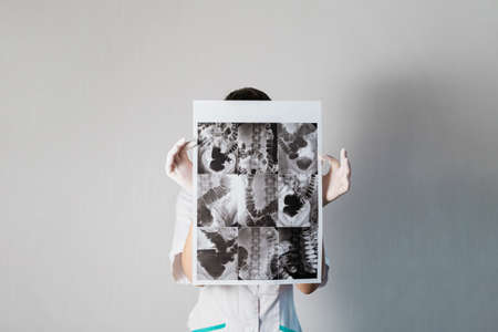 Woman doctor checking the intestine xray of dolichocolon person Stockfoto