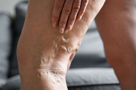 Varicose vein close up leg. Senior woman health problem. Foot with Diseased Veins. Health Care, Podiatry. High quality photo