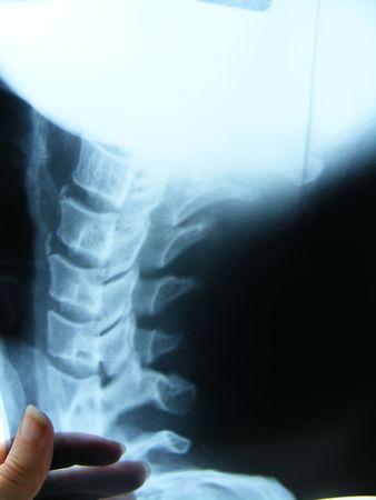 X-Ray shoot isolated on white.. Stock Photo - 2898357