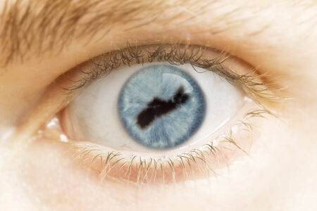 A close-up of an eye with the pupil in the shape of Nova Scotia.(series) photo