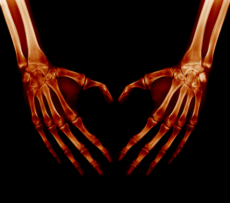 X-ray picture - Human palms folded in a heart shape Stok Fotoğraf