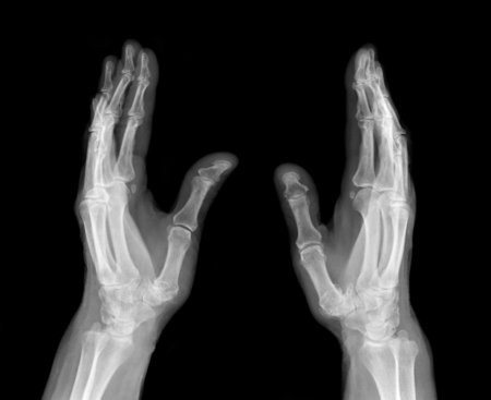 X-ray medical picture - Human palms