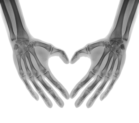 Negative X-ray - Human palms folded in a heart shape, isolated