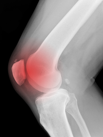 X-ray medical picture - Human knee with red symbol of painful place