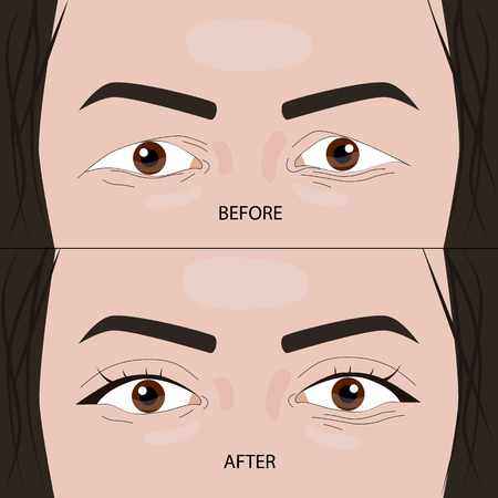 Cirugía de párpados dobles antes y después de la ilustración vectorial.