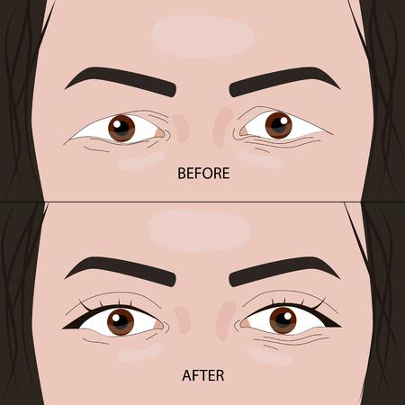 Cirugía de párpados dobles antes y después de la ilustración vectorial. EPS10