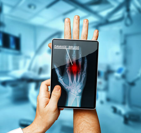 의사와 디지털 태블릿 스캔 환자의 손, 현대 엑스레이 기술 의학 개념