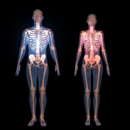 x ray: skeleton