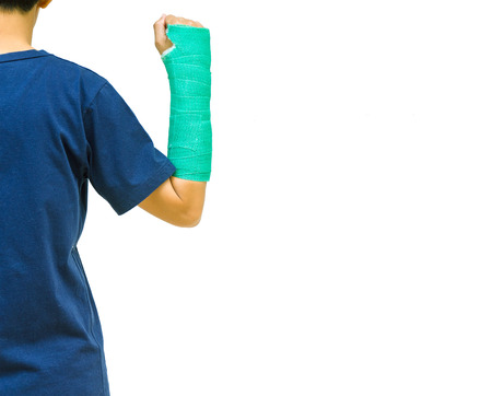 cast: green cast on hand and arm on white background. Stock Photo
