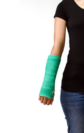 green cast on hand and arm isolated on white background. photo
