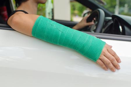 persona triste: mujer con la mano rota en el elenco verde que se sienta en el coche, el concepto de seguro