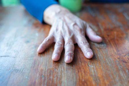 scar on finger.